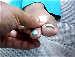 MILF Melissa Noahs Showing Her Green & Yellow Toenails